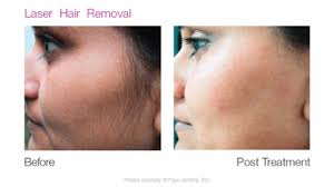 IPL, Hair Removal, Face and Body Contouring, Monterey CA, Medical Spa